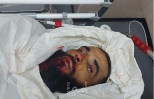 محدث.. استشهاد أحد موظفي بلدية البريج برصاص جيش الاحتلال وسط قطاع غزة
