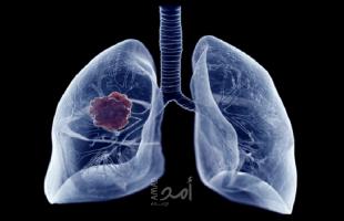 """اختراق السرطان مع """"أدوية متاحة"""" تستهدف 80٪ من أورام الرئة إثر اكتشاف """"فريد""""!"""