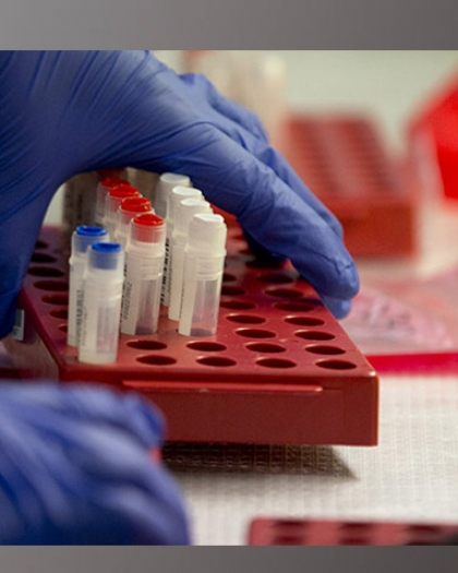 أمراض تشير لها نتيجة تحليل حمض الفوليك وفيتامين ب12 .. اعرف